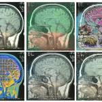 Musica e Cervello