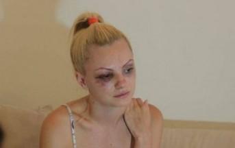 Alexandra Stan picchiata da Marcel Prodan o vittima di un incidente stradale?