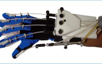 """Salute, Ictus: riabilitazione """"hi tech"""" con un guanto robotico"""