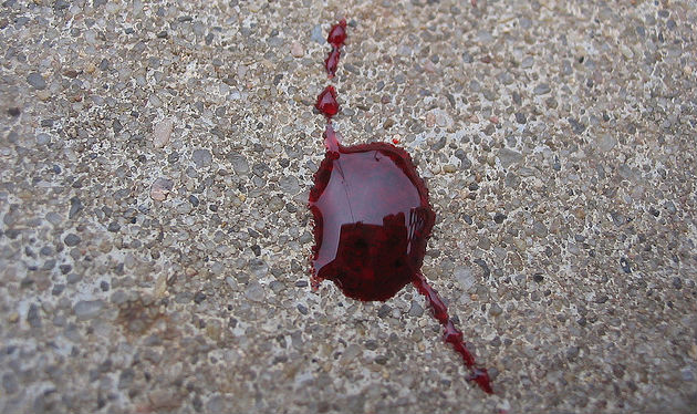 mostra arte contemporanea Napoli tema sangue