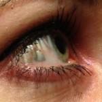 Gioiello in platino nel bulbo oculare