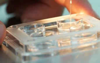 Infertilità maschile, la soluzione con la microchirurgia