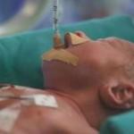 neonato intubato