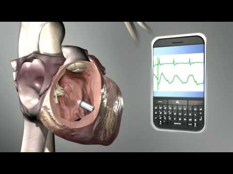 pacemaker medtronic(3)