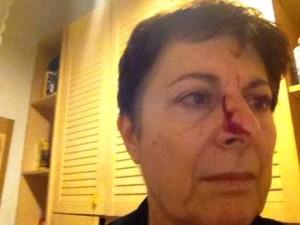 mamma picchiata figlio autistico mariarosa marass