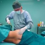 Liposuzione intervento