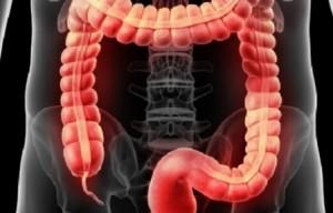 tumore colon prevenzione
