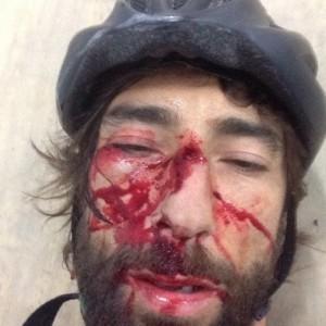 Brumotti incidente foto Instagram