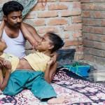 India, gemelle siamesi trovano l'amore