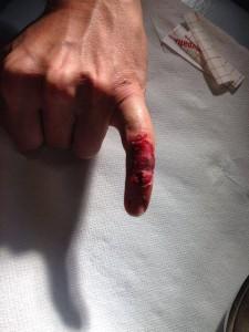 Rossi ferito
