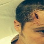 Gotham Ben McKenzie ferito sul set