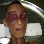 Stefano Cucchi errori nell'autopsia