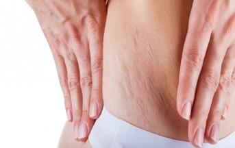 Smagliature dopo la gravidanza: i rimedi naturali fai da te per una pelle di nuovo perfetta