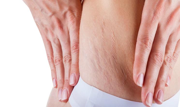 smagliature in gravidanza cosa usare, smagliature come eliminarle naturalmente, consigli bellezza gambe