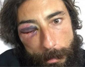 Striscia la Notizia oggi, nuova aggressione a Vittorio Brumotti: colpi di pistola e lancio di un mattone
