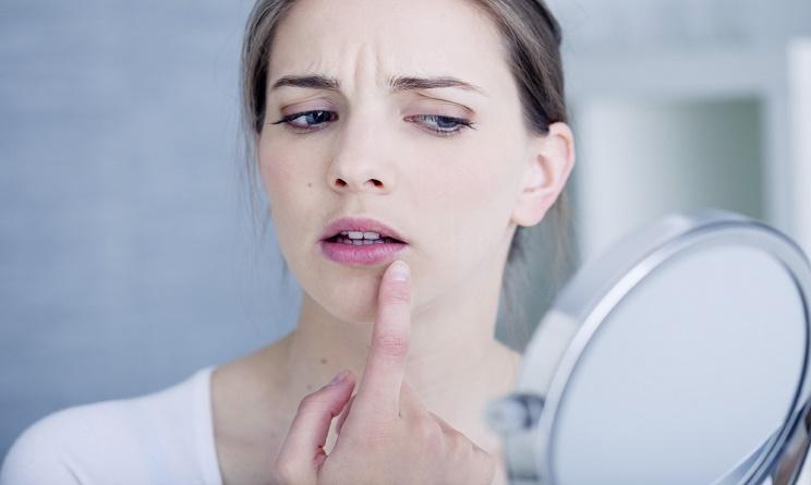 herpes labiale, herpes metodi naturali, herpes rimedi, herpes rimedi della nonna, herpes rimedi naturali, herpes al labbro, herpes angolo bocca, herpes bacio, herpes cause, herpes cura,