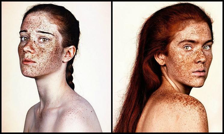 lentiggini e capelli rossi, lentiggini bellezza, lentiggini belle o brutte, lentiggini come valorizzare,