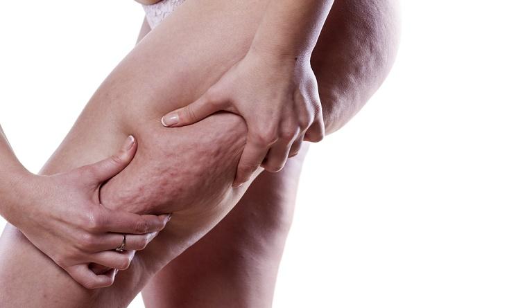 cellulite esercizi per eliminarla