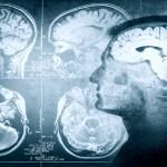 Attacchi di panico processi chimici cervello