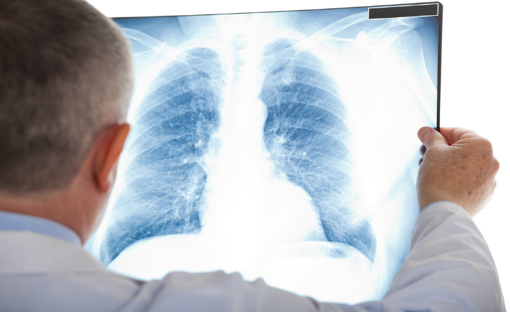 Tumore al polmone farmaco intelligente