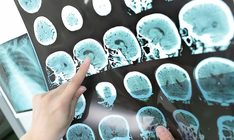 Ictus, staminali nel cervello per limitare i danni: pazienti recuperano movimento