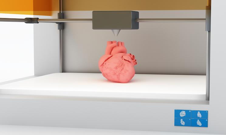 Cuore stampato 3D salva la vita a piccola di tre anni FOTO