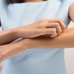 zanzare rimedi efficaci