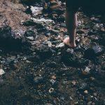 gambe gonfie