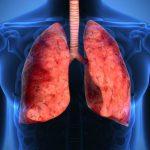 cancro al polmone nuova immunoterapia