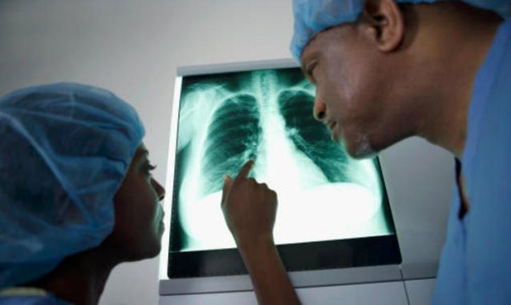Tumore al polmone app spiega sintomi, cause e cura
