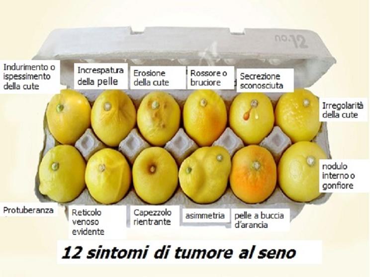 tumore al seno, tumore al seno sintomi, tumore al seno prevenzione, tumore al seno sintomi visibili, tumore al seno età, cancro al seno,