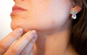 Come eliminare i brufoli velocemente: 3 rimedi naturali per liberare il viso