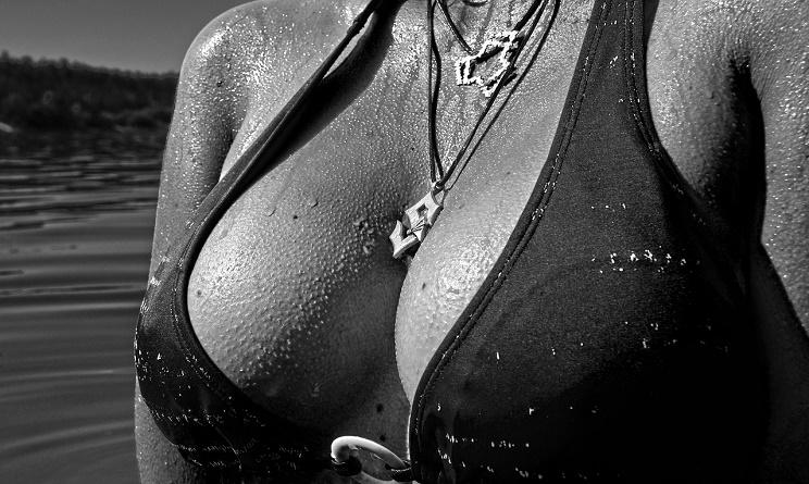 seno grosso, seno grande, seno troppo grosso, seno grosso riduzione, seno grosso chirurgia plastica, riduzione seno, riduzione seno perché farla, riduzione seno cicatrici,