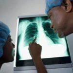 Tumore al polmone sintomi tra le cause anche un virus