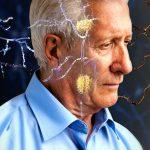 Alzheimer saper parlare due lingue protegge dalla demenza senile