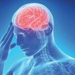 Ictus sintomi la causa e la proteina Nox2