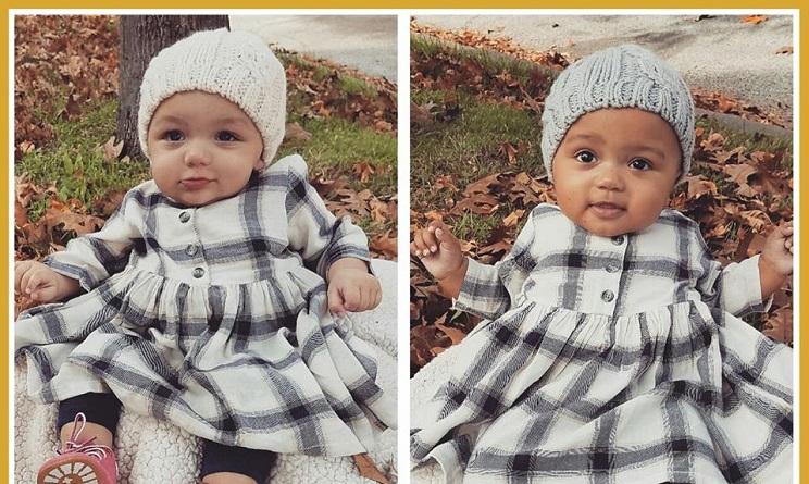 gemelle, gemelle bianca e nera, gemelle con la pelle di colore diverso,