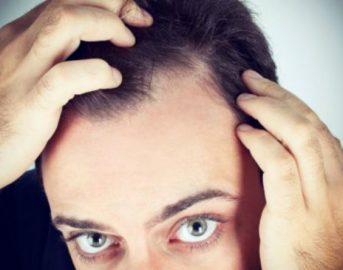 Calvizie e perdita di capelli: gli uomini bassi sono più a rischio