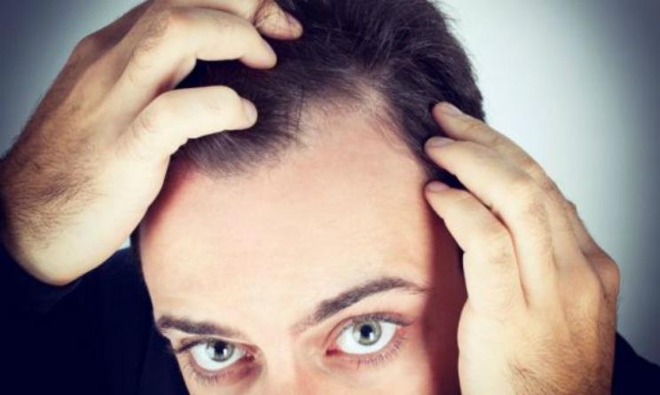 In tempo i capelli di gv abbandonano