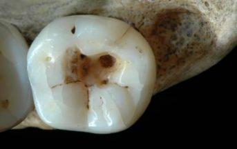 L'otturazione più antica al mondo risale all'era glaciale: il 'dentista' era un italiano
