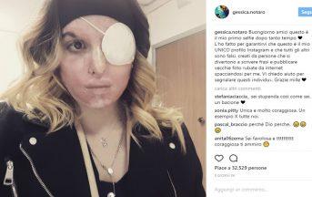Gessica Notaro oggi: il primo faccia a faccia con l'ex che l'ha sfregiata