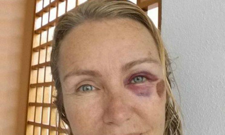 Incidente per Licia Colò: la foto choc sui social