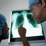 Tumore al polmone, immunoterapia al posto di chemioterapia come prima soluzione