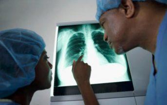 Tumore al polmone: nuova cura d'attacco, immunoterapia in prima linea contro il cancro