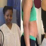 Ha la pancia gonfia e diventa vegana per depurarsi, dopo pochi mesi la diagnosi terribile
