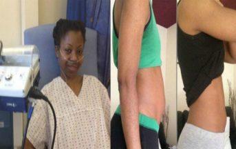 Ha la pancia gonfia e per depurarsi diventa vegana: dopo alcuni mesi la terribile diagnosi