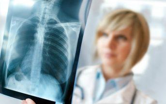 Tumore al polmone: immunoterapia e chemio insieme sono più efficaci contro il cancro