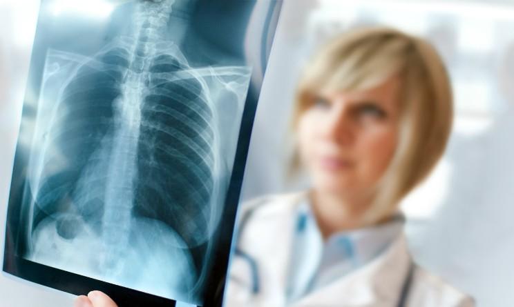 Tumore al polmone, chemio e immunoterapia piu efficaci se usate assieme