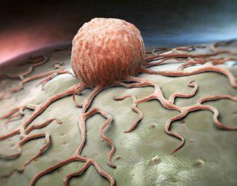 Cancro: scoperto meccanismo che potrebbe bloccarne la proliferazione