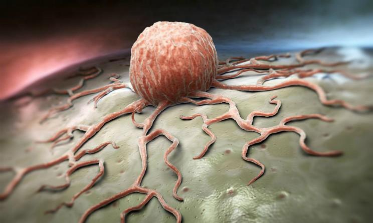 cancro, scoperto meccanismo biologico che potrebbe bloccarne la proliferazione